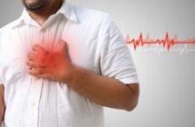 Vorhofflimmern: Ursachen, Symptome & Behandlung