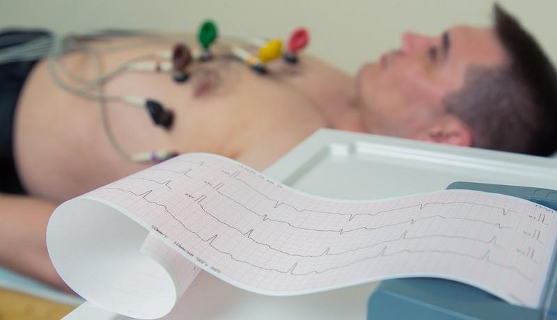 Ein EKG zeichnet Herzaktivität und Herzrhythmus auf.