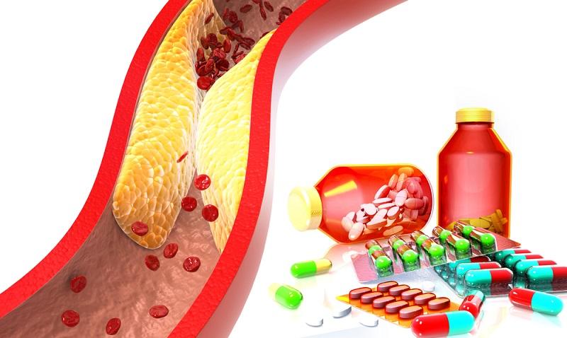 Die Arteriosklerose kann sich in allen Arterien des Körpers bilden, auch an denen, die für die Versorgung des Herzens zuständig sind.  ( Foto: Shutterstock-Explode  )