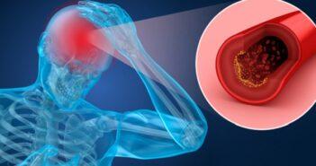 Schlaganfall/Apoplex: Ursachen, Symptome, Behandlung (Foto: Shutterstock-Alex Mit)